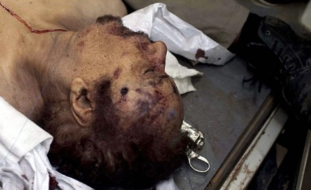 Purported bullethole wound of Gaddafi