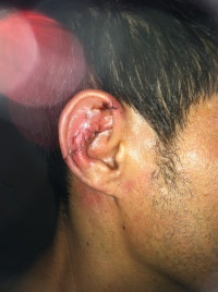 Man Says Cop Tossed Him into Glass that Sliced Off His Ear ear