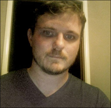 Christian Hartsock's bruised face. Photo: The Daily Caller