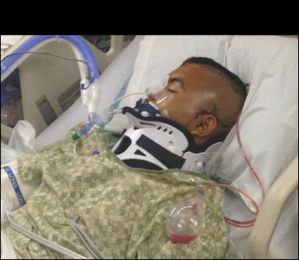 High School Student in a Coma After Cops Taze Him nino2