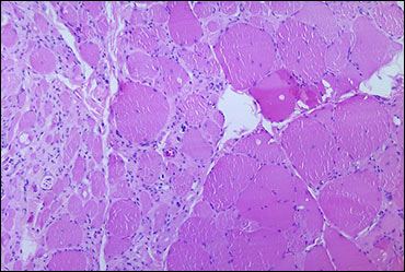 A photomicrograph of skeletal muscle tissue revealing myotonic dystrophic changes as a result of Polio Type III. / Image: Wikimedia Commons