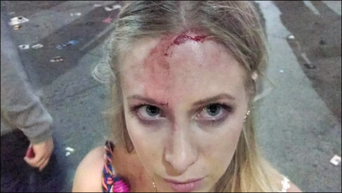 Austin Police Beat Woman During SXSW Then Lied About It, Victim Claims headstrike