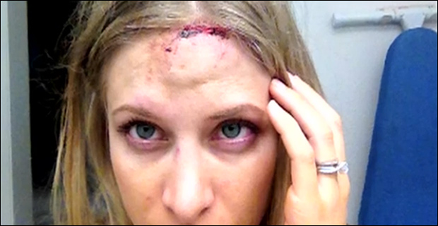 Close up of Woodbury's head injury / Screen capture via KVUE.com.